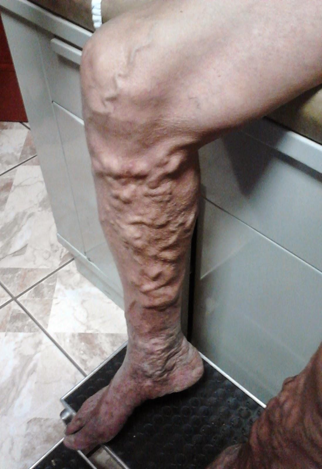 La tromboflebitis de las extremidades inferiores el tratamiento los síntomas